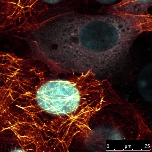 Transfected COS7-cells under a Leica SP5 confocal microscope (photo by O. E.)